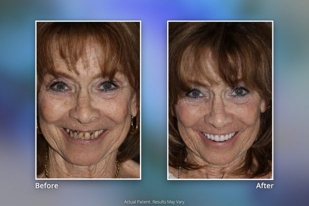 Dental Implants Before & After: Smile Gallery 10 | Specialists in Implant Dentistry