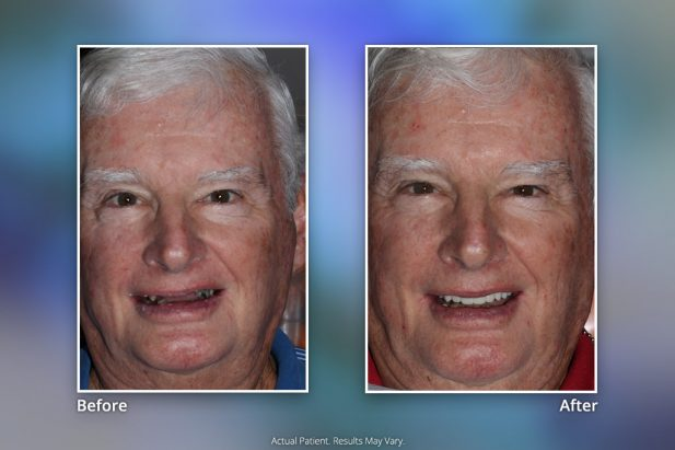 Dental Implants Before & After: Smile Gallery 11 | Specialists in Implant Dentistry