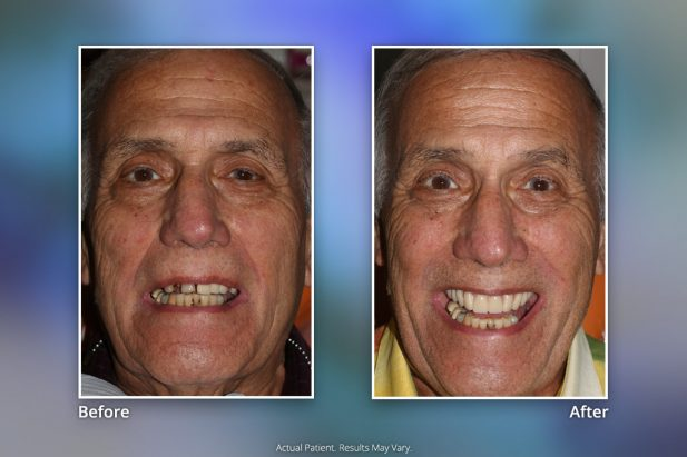 Dental Implants Before & After: Smile Gallery 12 | Specialists in Implant Dentistry