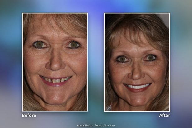 Dental Implants Before & After: Smile Gallery 13 | Specialists in Implant Dentistry
