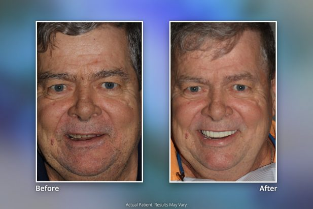 Dental Implants Before & After: Smile Gallery 14 | Specialists in Implant Dentistry