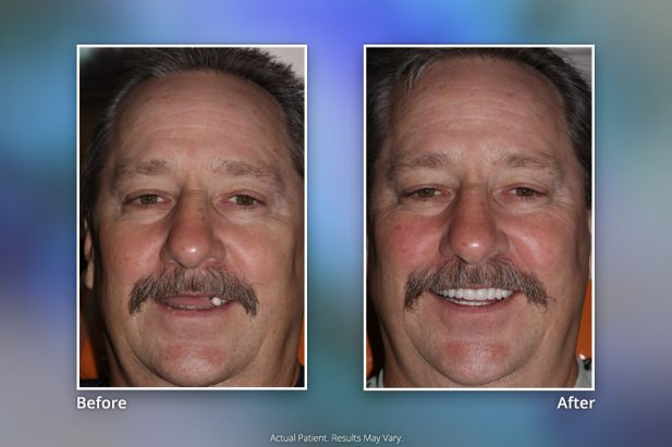 Dental Implants Before & After: Smile Gallery 15 | Specialists in Implant Dentistry