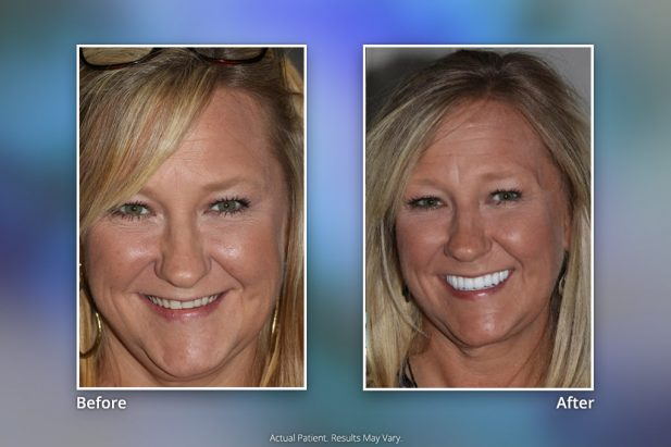 Dental Implants Before & After: Smile Gallery 16 | Specialists in Implant Dentistry