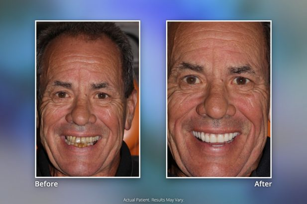 Dental Implants Before & After: Smile Gallery 17 | Specialists in Implant Dentistry
