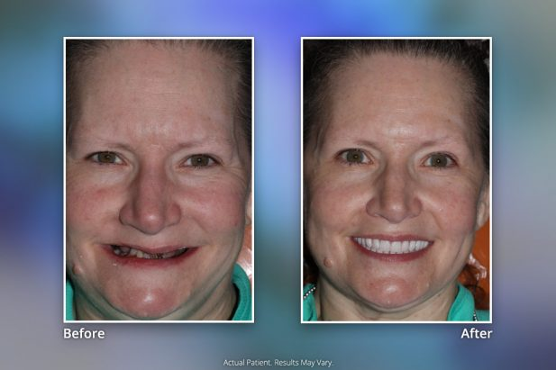 Dental Implants Before & After: Smile Gallery 18 | Specialists in Implant Dentistry