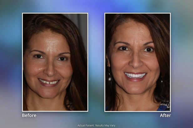 Dental Implants Before & After: Smile Gallery 19 | Specialists in Implant Dentistry