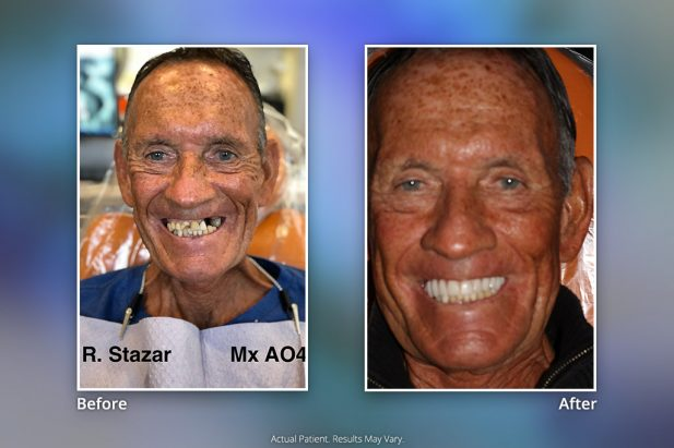 Dental Implants Before & After: Smile Gallery 8 | Specialists in Implant Dentistry