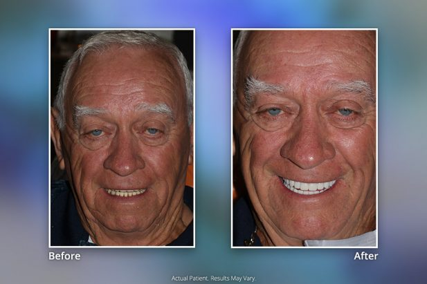 Dental Implants Before & After: Smile Gallery 9 | Specialists in Implant Dentistry