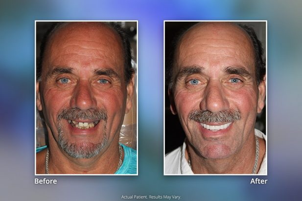 Before & After Smile Gallery: Patient 1 - Specialists in Implant Dentistry