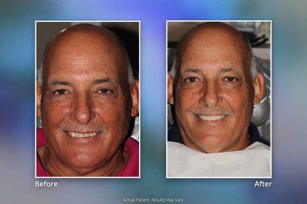 Before & After Smile Gallery: Patient 2 - Specialists in Implant Dentistry