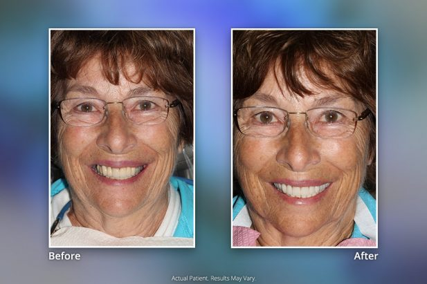 Before & After Smile Gallery: Patient 3 - Specialists in Implant Dentistry