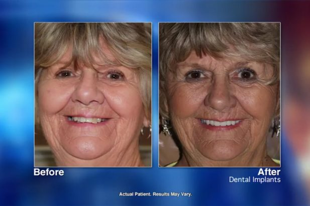 Beverly Patient Before & After - Wellness Hour with Dr. Matthew J. Holtan