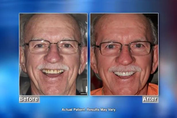 Bob Patient Before & After - Wellness Hour with Dr. Matthew J. Holtan