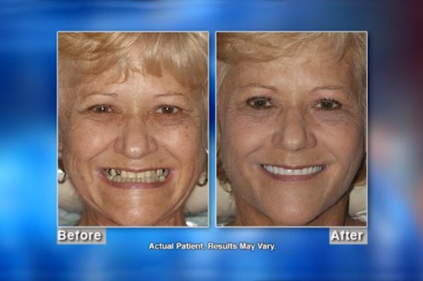 Susan Patient Before & After - Wellness Hour with Dr. Matthew J. Holtan